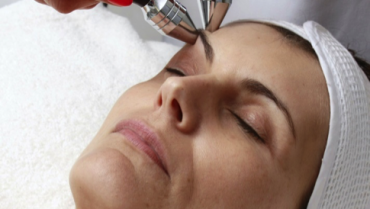 25% off Microdermabrasion