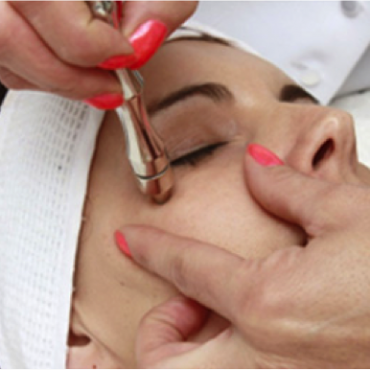 Top ten facts about Microdermabrasion