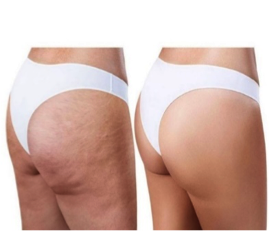 Cellulite reduction treatments